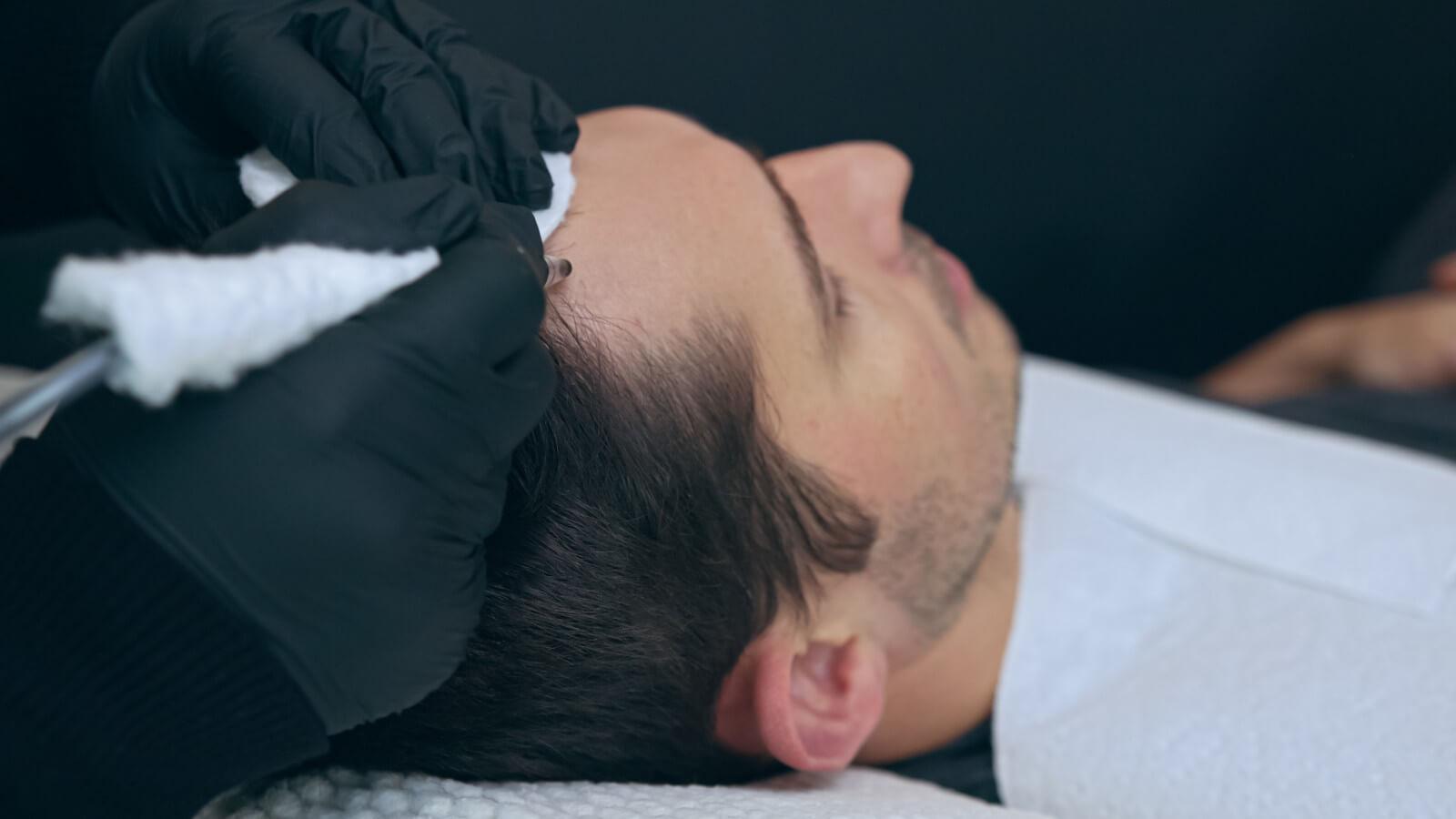 man undergoes scalp micropigmentation